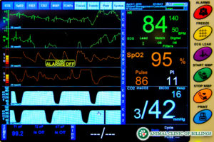 anesthesia monitoring and safety